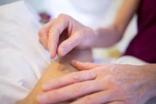 Acupuncture Advice To Use To Your Benefit